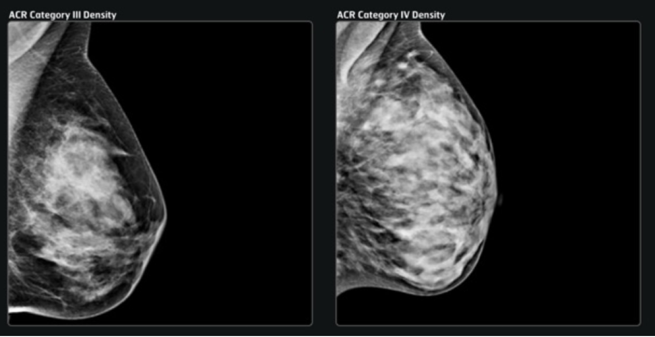 Information on breast composition from the DENSE trial