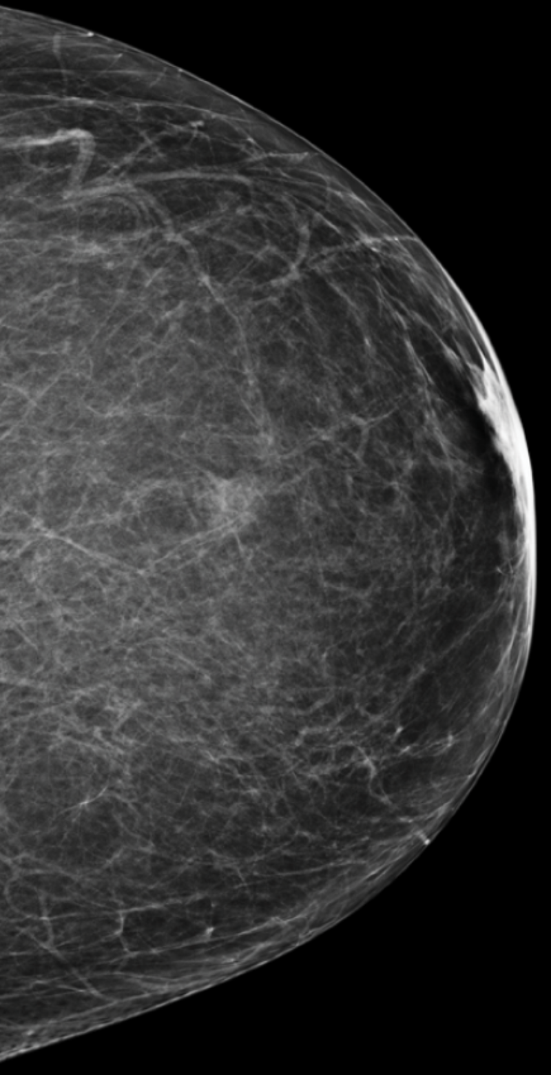 Mammogram with category a breast density