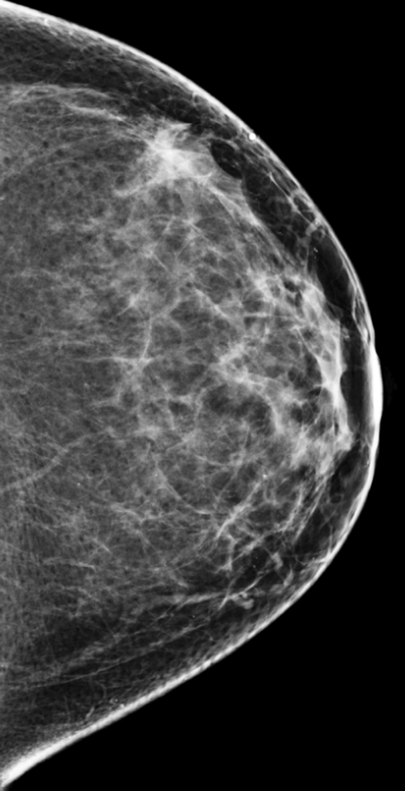 Mammogram with category b breast density